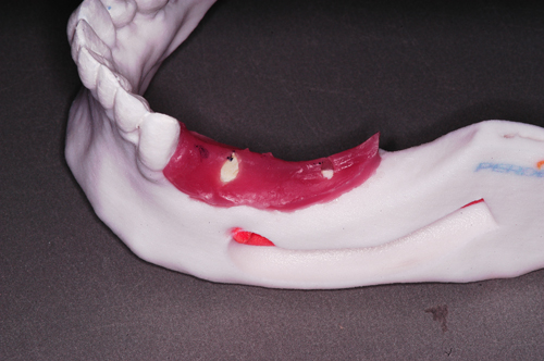 Modelo elg con espesor de encía artificial