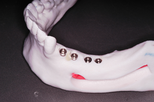 Implantes instalados idealmente en modelo elg