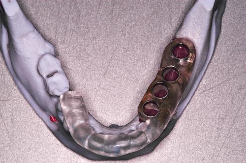 Férula quirúrgica confeccionada en base a implantes en modelo elg