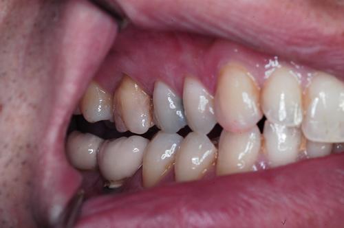 Observación de lateralidad compartida por premolares