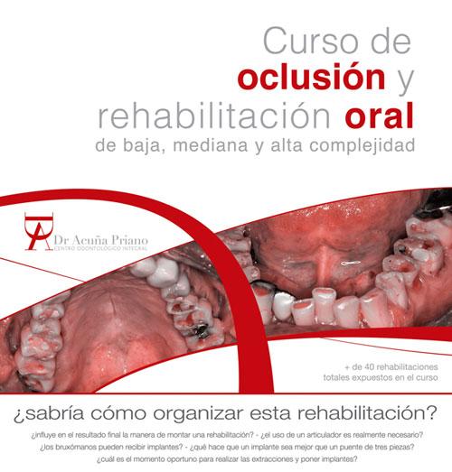 Curso de oclusion y rehabilitacion oral de baja, mediana y alta complejidad