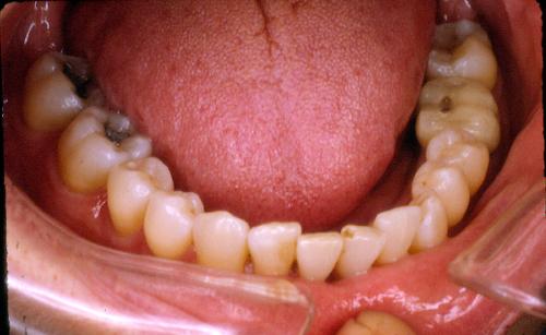 sindrome-disfuncional-temporo-mandibular-de-origen-oclusal_02.jpg