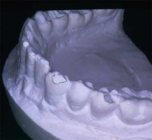 sindrome-disfuncional-temporo-mandibular-de-origen-oclusal_04.jpg