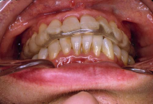 sindrome-disfuncional-temporo-mandibular-de-origen-oclusal_07.jpg