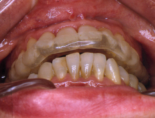 sindrome-disfuncional-temporo-mandibular-de-origen-oclusal_08.jpg