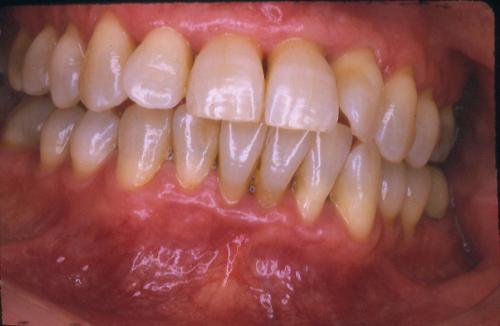 sindrome-disfuncional-temporo-mandibular-de-origen-oclusal_11.jpg