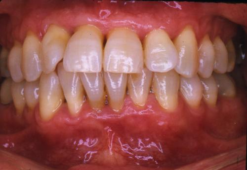 sindrome-disfuncional-temporo-mandibular-de-origen-oclusal_12.jpg