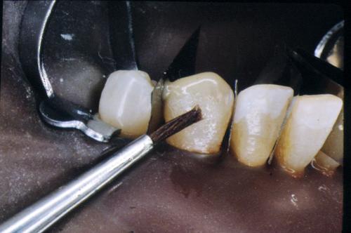 sindrome-disfuncional-temporo-mandibular-de-origen-oclusal_13.jpg