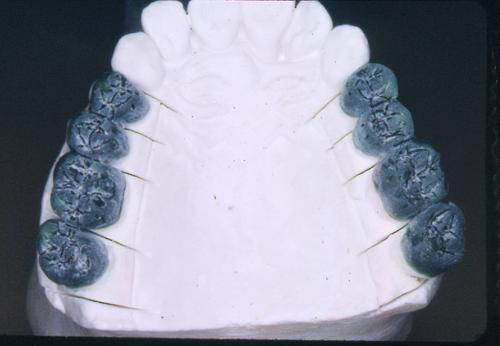 sindrome-disfuncional-temporo-mandibular-de-origen-oclusal_14.jpg