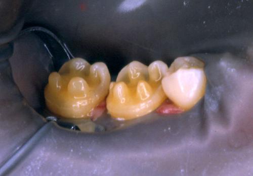 sindrome-disfuncional-temporo-mandibular-de-origen-oclusal_15.jpg