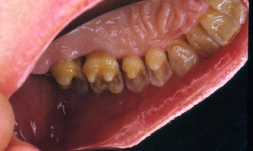 sindrome-disfuncional-temporo-mandibular-de-origen-oclusal_17.jpg
