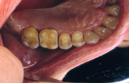 sindrome-disfuncional-temporo-mandibular-de-origen-oclusal_18.jpg