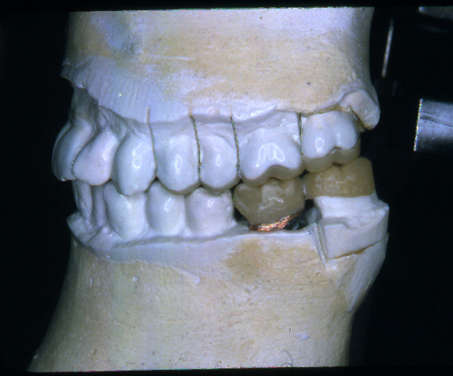 sindrome-disfuncional-temporo-mandibular-de-origen-oclusal_19.jpg
