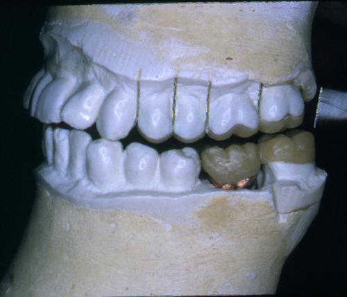sindrome-disfuncional-temporo-mandibular-de-origen-oclusal_20.jpg