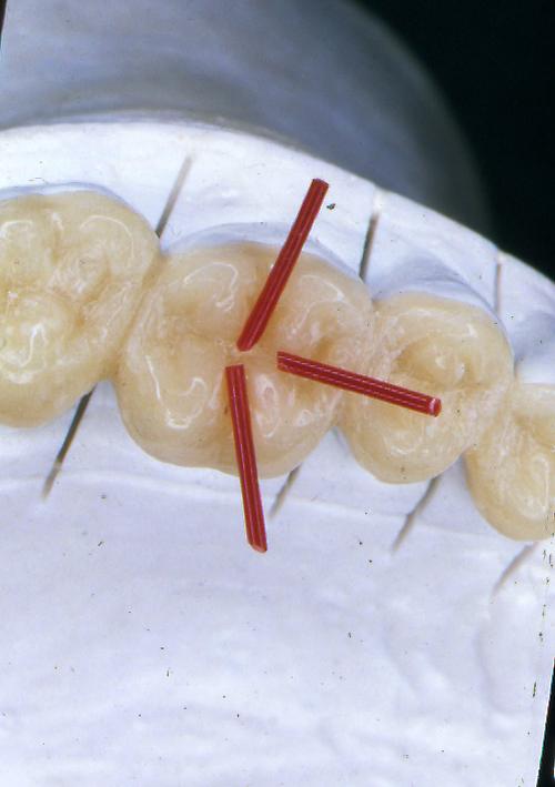 sindrome-disfuncional-temporo-mandibular-de-origen-oclusal_21.jpg