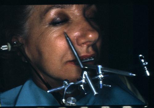sindrome-disfuncional-temporo-mandibular-de-origen-oclusal_24.jpg