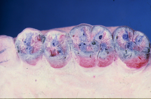 sindrome-disfuncional-temporo-mandibular-de-origen-oclusal_25.jpg
