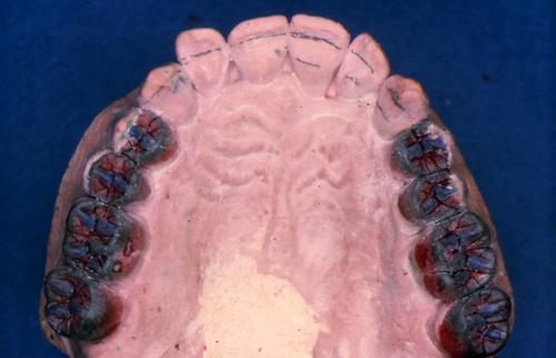 sindrome-disfuncional-temporo-mandibular-de-origen-oclusal_26.jpg