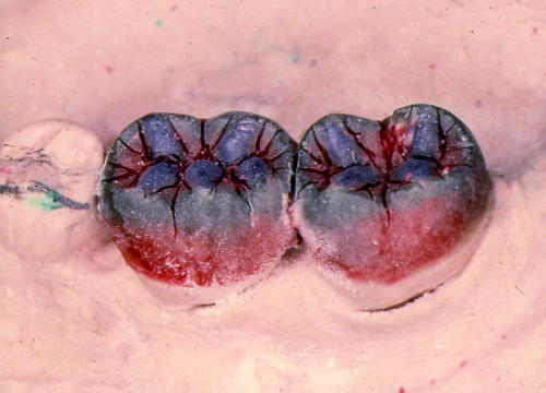 sindrome-disfuncional-temporo-mandibular-de-origen-oclusal_27.jpg