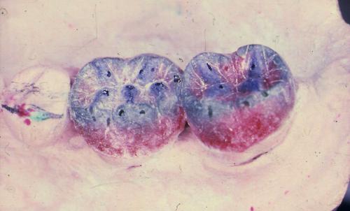 sindrome-disfuncional-temporo-mandibular-de-origen-oclusal_28.jpg