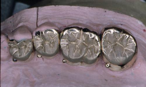sindrome-disfuncional-temporo-mandibular-de-origen-oclusal_29.jpg