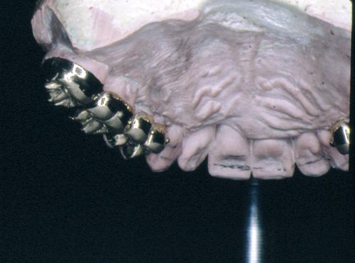 sindrome-disfuncional-temporo-mandibular-de-origen-oclusal_30.jpg