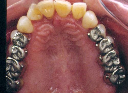 sindrome-disfuncional-temporo-mandibular-de-origen-oclusal_31.jpg