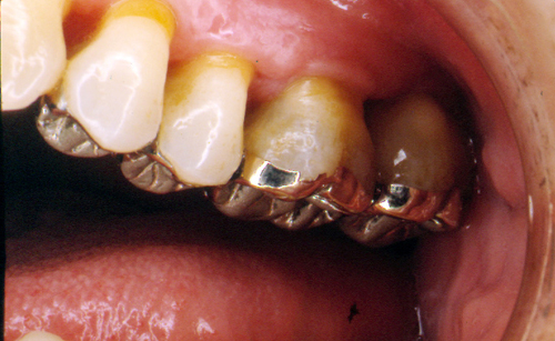sindrome-disfuncional-temporo-mandibular-de-origen-oclusal_32.jpg