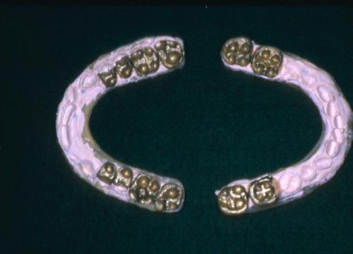sindrome-disfuncional-temporo-mandibular-de-origen-oclusal_33.jpg