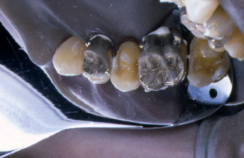 sindrome-disfuncional-temporo-mandibular-de-origen-oclusal_34.jpg