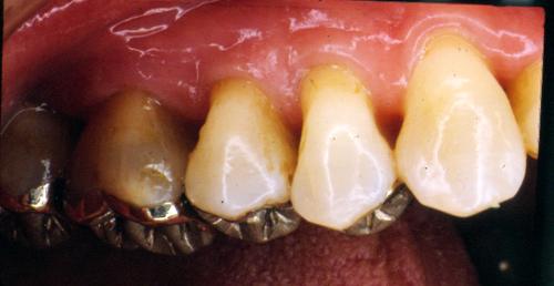 sindrome-disfuncional-temporo-mandibular-de-origen-oclusal_35.jpg
