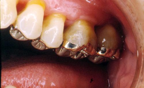 sindrome-disfuncional-temporo-mandibular-de-origen-oclusal_36.jpg
