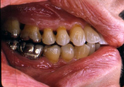 sindrome-disfuncional-temporo-mandibular-de-origen-oclusal_37.jpg