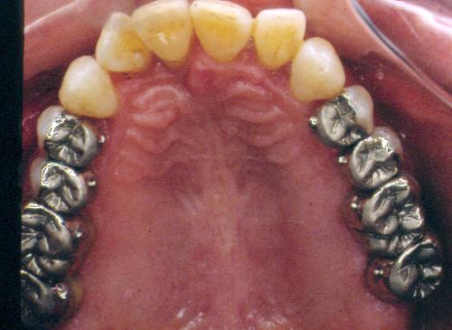 sindrome-disfuncional-temporo-mandibular-de-origen-oclusal_39.jpg