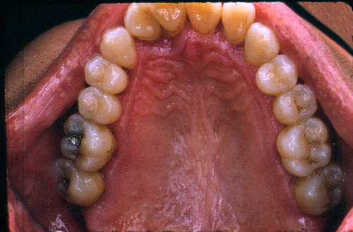 sindrome-disfuncional-temporo-mandibular-de-origen-oclusal_40.jpg